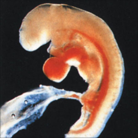the case against abortion prenatal development